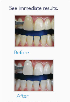 Zoom! Whitening Before and After
